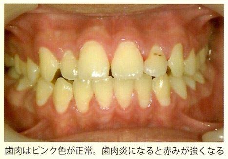 歯茎の腫れや出血