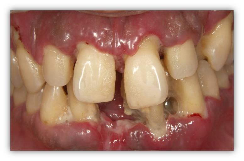 宮崎市谷山歯科医院の歯周病と全身疾患の関係